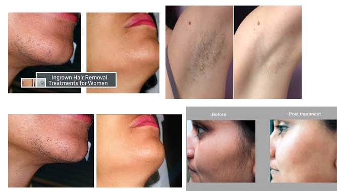Permanent Hair Remov On Twitter How Much Does Laser Hair Removal