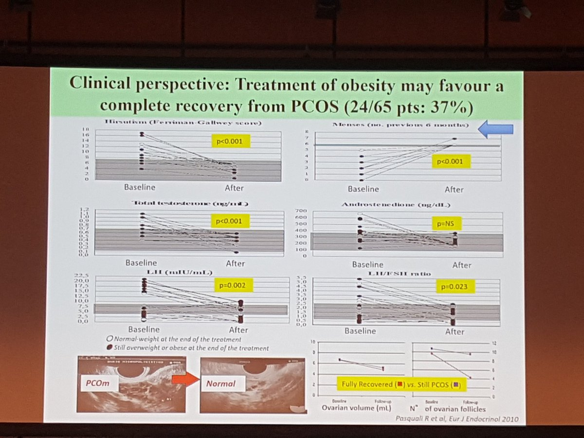 Abd Tahrani On Twitter Weight Loss By Life Style Or Bariatricsurgery Have Favourable Impact Women With PCOS ECO2018 Obsmuk WiebkeArlt ManoloTino