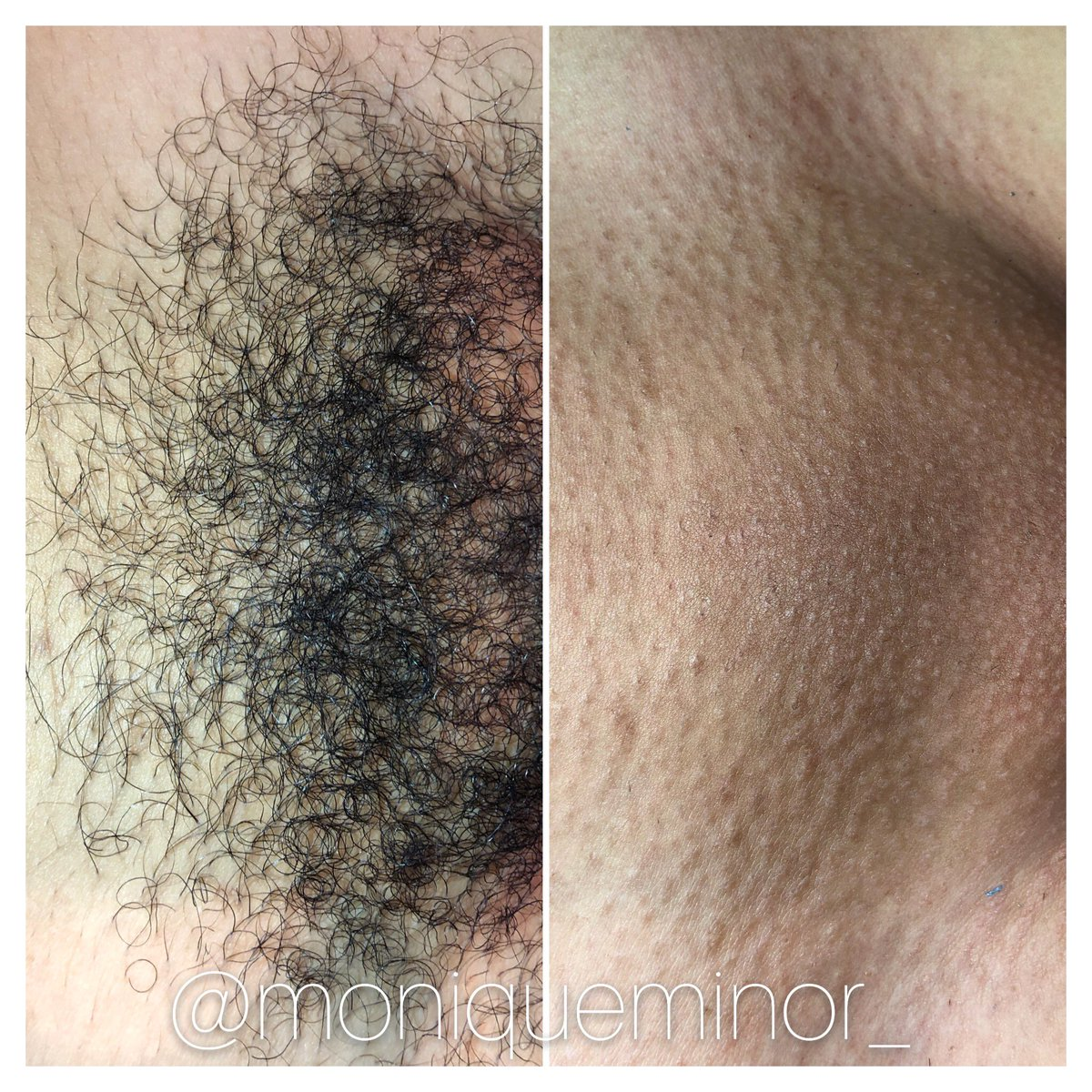 Monique Minor On Twitter Before And After Brazilian Wax What A