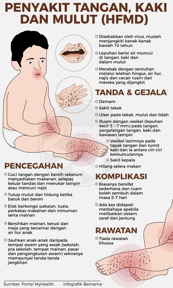 Bernama On Twitter Infografik Penyakit Tangan Kaki Dan Mulut Hfmd