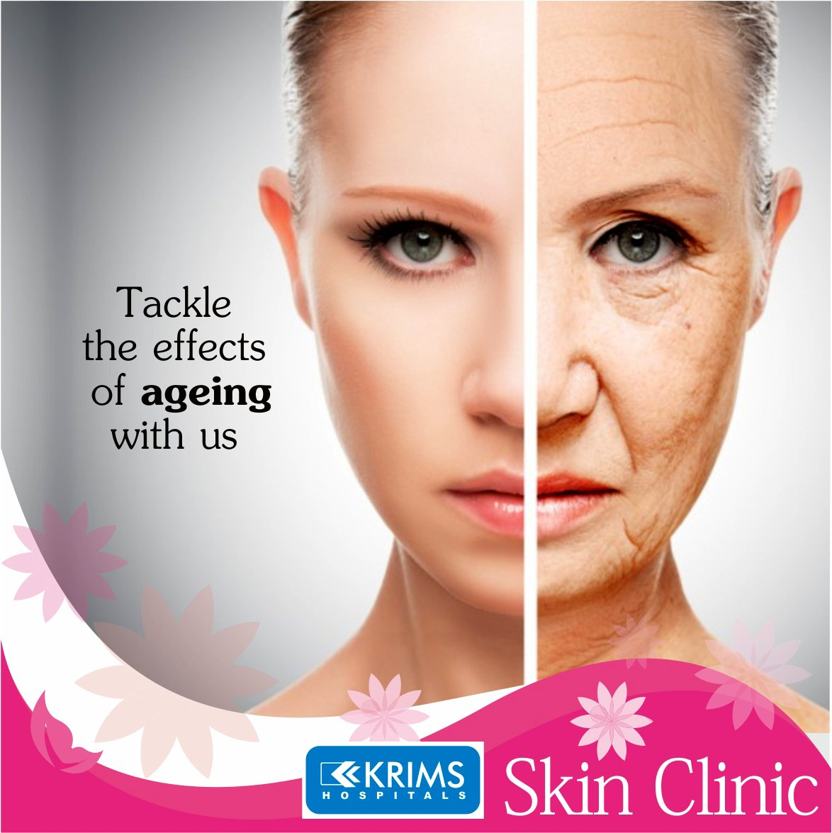 Youre Never Too Old for Acne