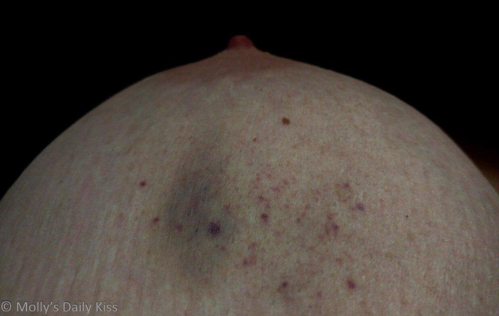 Making the breast ofit https://t.co/SmJTkaVmys https://t.co/NqSpl9cnyL