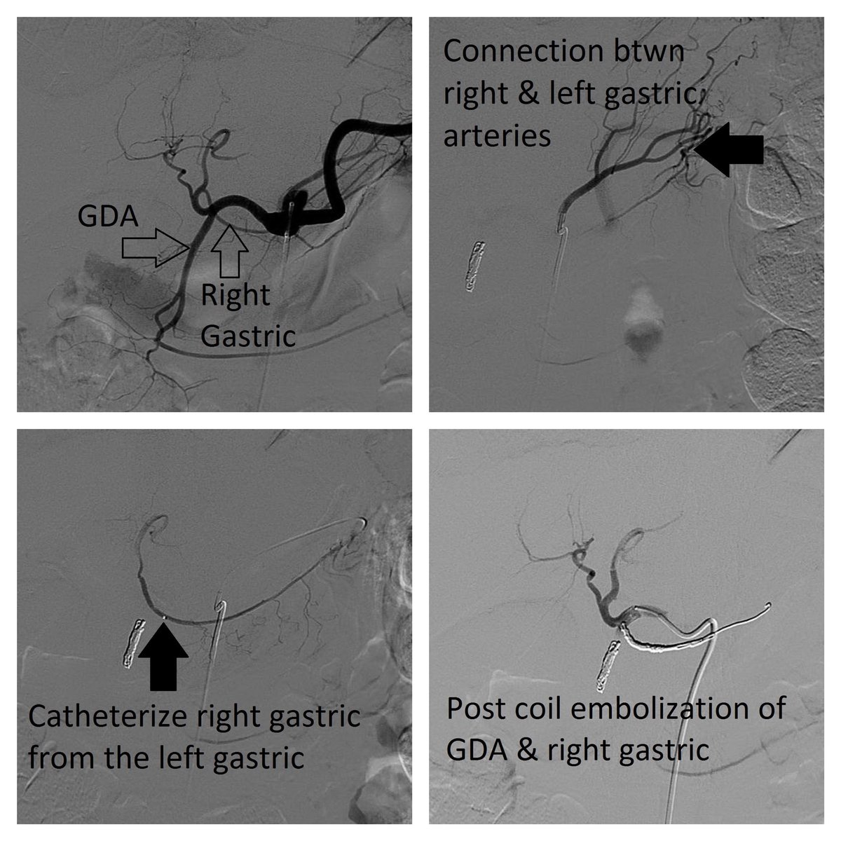 Aj Gunn On Twitter Nice Example Of A Right Gastric Artery Seen
