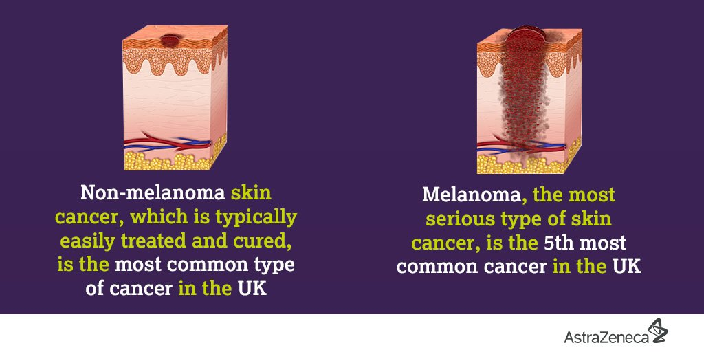 Astrazenecauk A Twitter Skin Cancer Includes Basalcell Skincancer Squamouscell Skin Cancers Other Rare Types They Tend To Develop Most Often On Skin That S Exposed To The Sun Find Out More About