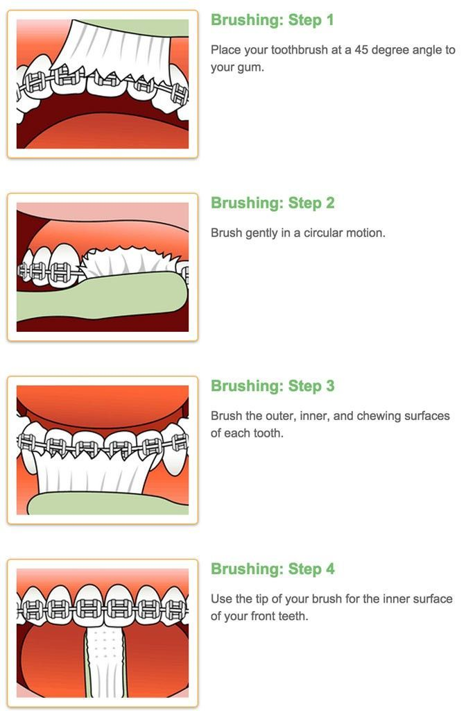 Thomas orthodontics on twitter brushing your teeth with braces never miss a moment ccuart Gallery