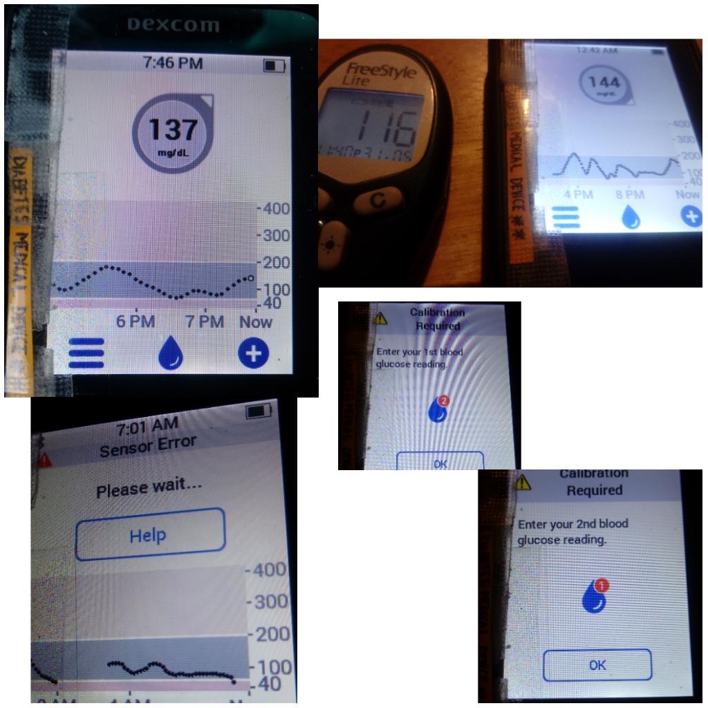 Chewey Lam -T1D 🏃#insulin4all on Twitter: