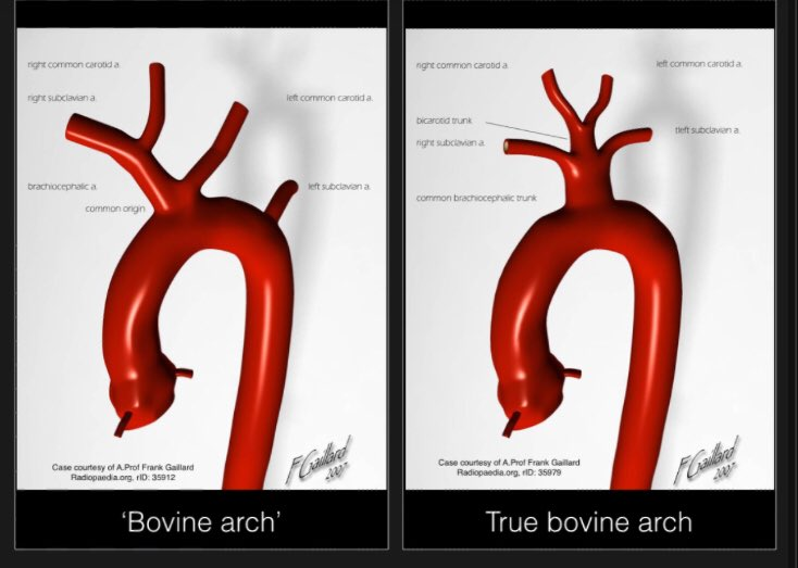 Tim Luijkx On Twitter Cowes Revisited Most Common Aortic Arch