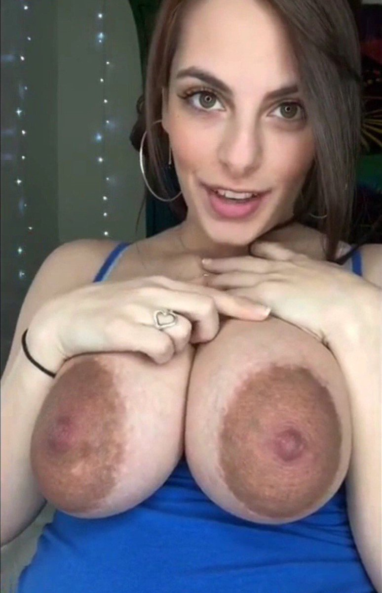 Extremely large areolas