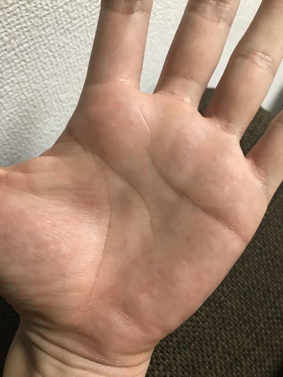 かゆい なし 湿疹 が 手のひら
