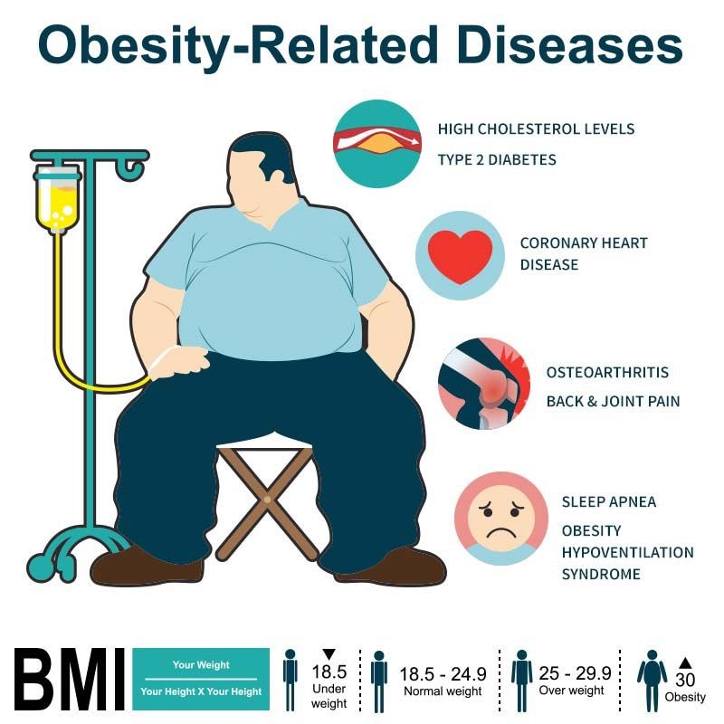 Salman On Twitter Health Problems Associated With Obesity Stigma And Public Disapproval Obstructive Sleep Apnea Diseases Of The Bones Joints And Skin Diabetes Mellitus Nonalcoholic Fatty