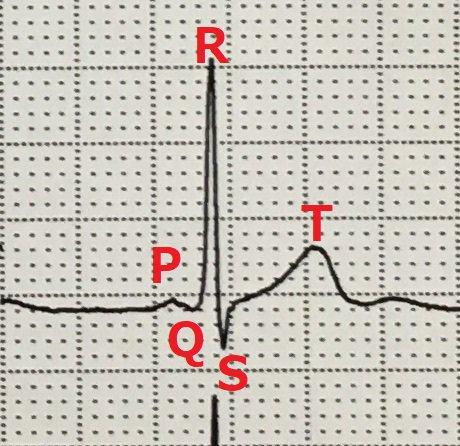 心電図 pq 短縮