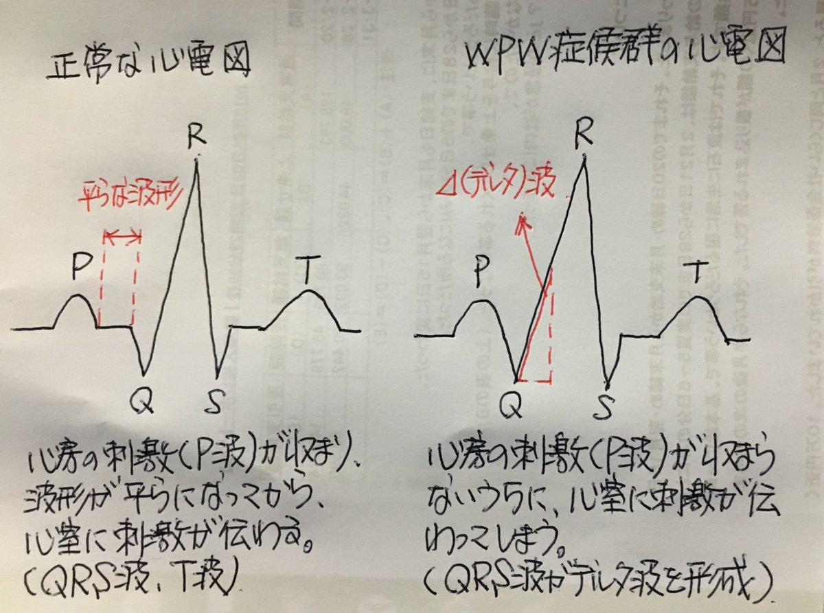 Pq 短縮 心電図