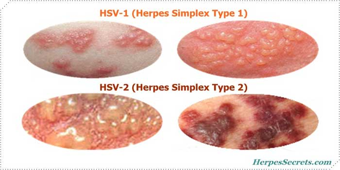 signs you have herpes