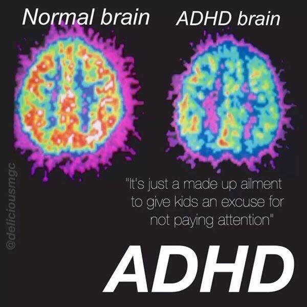Brain Differences In Adhd >> Professor Susan Young On Twitter So Adhd Is Not Bad Parenting