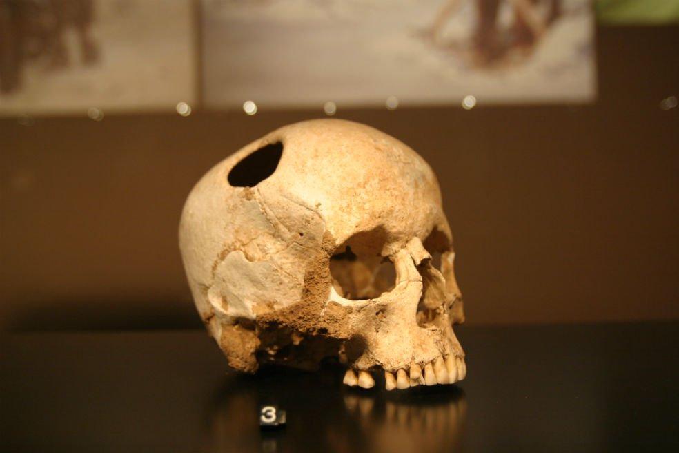 Có bằng chứng về loại phẫu thuật này xuất hiện từ rất xa xưa. Ví dụ, hộp sọ bị khoét xương này của một cô gái sống cách đây 5.500 năm. Cô đã sống sót sau cuộc phẫu thuật. Bảo tàng Lịch sử Tự nhiên, Lausanne (Ảnh: CC BY SA 2.0)