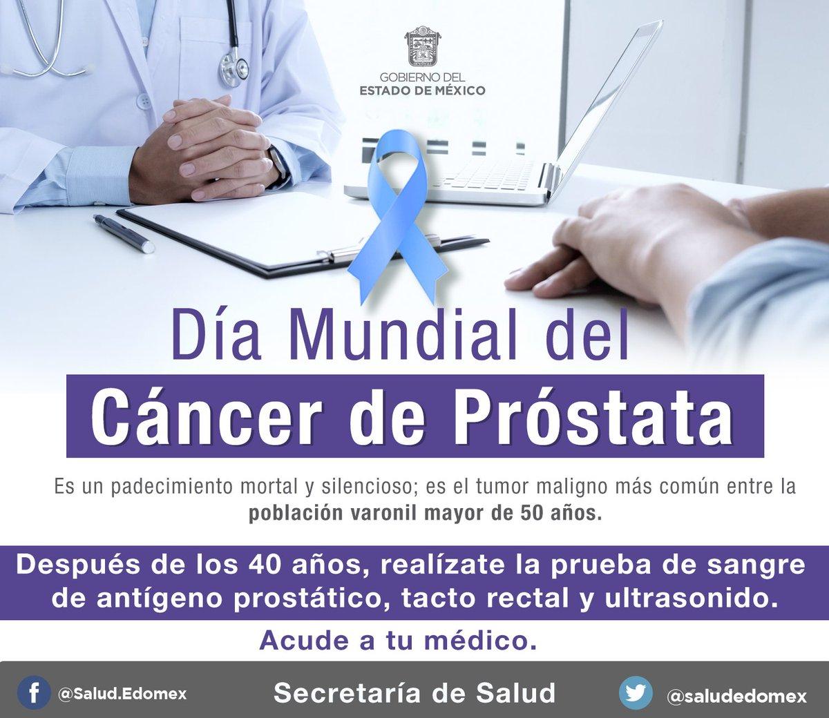 ultrasonido para detección de cáncer de próstata