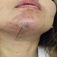 Managing Complications of Submental Artery Involvement after Hyaluronic Acid Filler Injection in Chin Region  http:// dlvr.it/QX6qq2  &nbsp;  <br>http://pic.twitter.com/eIeNLVAoUa
