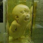 ロシアには、戦車博物館とか強制収容所博物館とかいろんなのがあるけど、何といっても一番人気は、奇形児博物館こと、クンストカメラ! ピョートル大帝が建設したロシア最古の博物館!見渡す限り奇形児のホルマリン漬けや標本でいっぱい! みんなおいでよ!