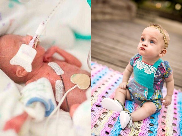 'Miracle baby' born after 21 weeks celebrates her first birthday -- https://t.co/E5jR0y8sP9