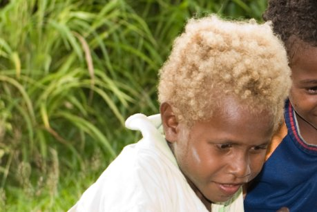 Despite being dark-skinned and living just below the equator, between 5% and 10% of Solomon Islanders have naturally blond hair. It is believed the blond gene developed independently in the region and was not introduced from another population. (Image: New Zealand Defence Force) Photo
