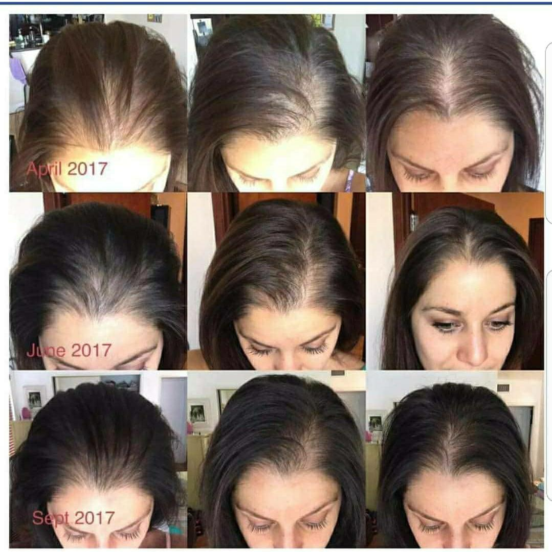Monat Healthy Hair On Twitter Alopecia Sufferer Take A Look At These Monat Products Absolutely Amazing Results Shown Below Encourages Hair Growth And Makes Your Hair Look And Feel Fabulous Alopecia Alopeciaawareness