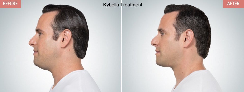 "What is #KYBELLA®?  KYBELLA® is the only #FDA approved injectable treatment used in adults that helps destroys fat cells under the chin - submental fat (also called ""double chin&quot;) - to improve your profile Get more info here:  http:// bit.ly/BellaFinaKybel la &nbsp; … <br>http://pic.twitter.com/10aXulKiyP"