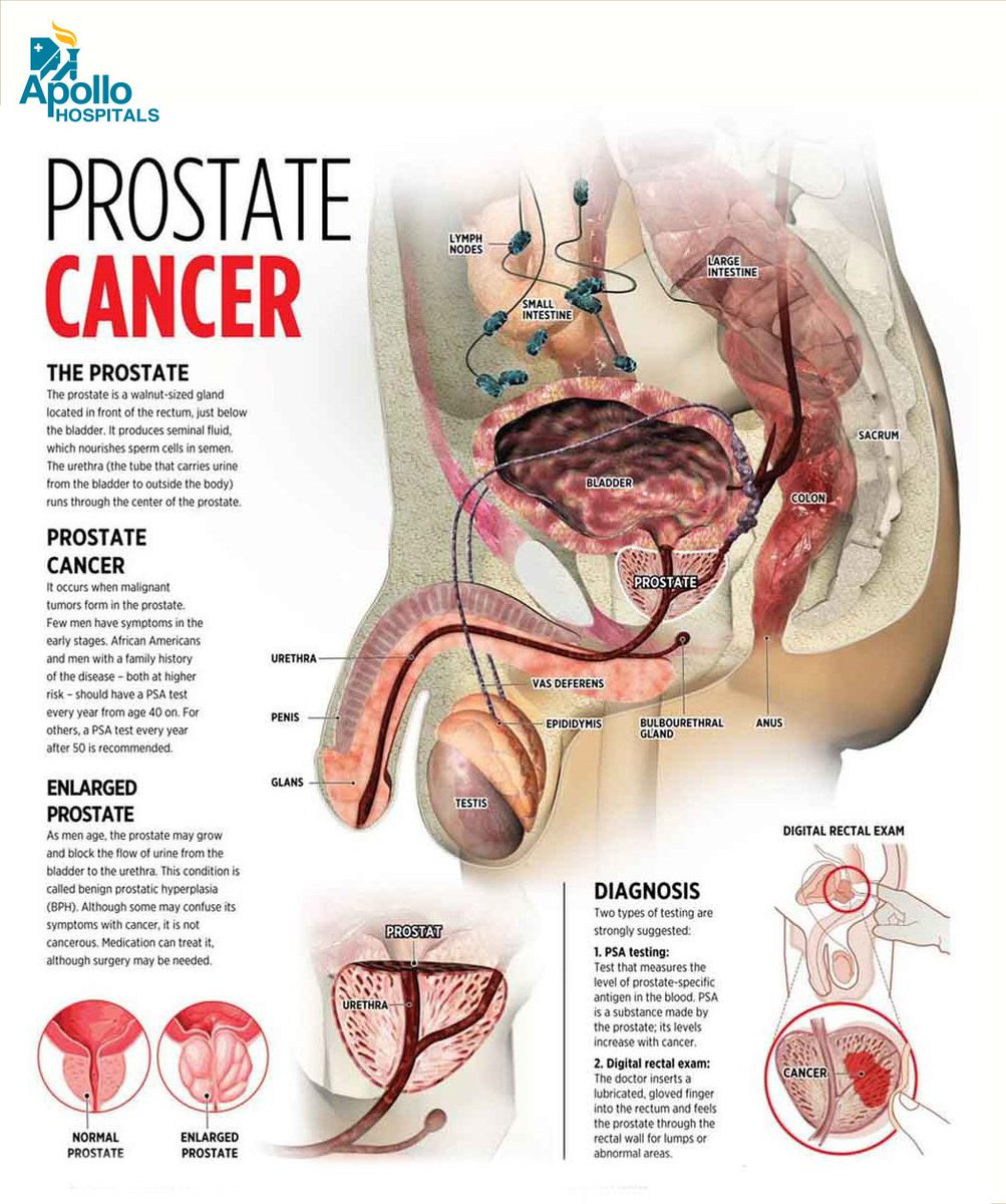 Apollohospitals On Twitter Prostate Cancer Affects The Prostate
