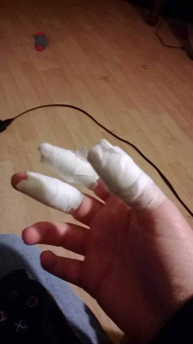 test Twitter Media - Ok so my stove coil caught fire while cooking. I used a fork to try to pull it unpluged from stove but would not work with fork. Dumb me grabed it bare handed and it stuck to my fingers. I had about 2nd degree burns on My fingers. (This was years ago) https://t.co/gDaBNMLLpj