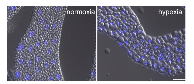 New preprint from the Grewal lab out now. We describe how the fat body functions as a hypoxia sensor to control development and survival in Drosophila by regulating TORC1 and lipid metabolism   https://www. biorxiv.org/content/early/ 2018/06/20/350520.1 &nbsp; … <br>http://pic.twitter.com/NFTZzL2D3h