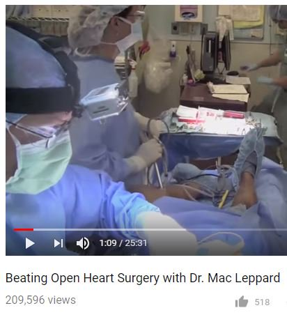 Providence has been leading the way for #HeartCare for 40+ years. This clip of Dr. Mac Leppard has been viewed by 200K people! All taken by the skill &amp; miracle of beating #heartsurgery, the standard of CV surgery at @ProvHospSC.  https:// youtu.be/byyA3xnvsFk?t= 6s &nbsp; …  #DrMLeppardatProv<br>http://pic.twitter.com/jTFNzMNIpX