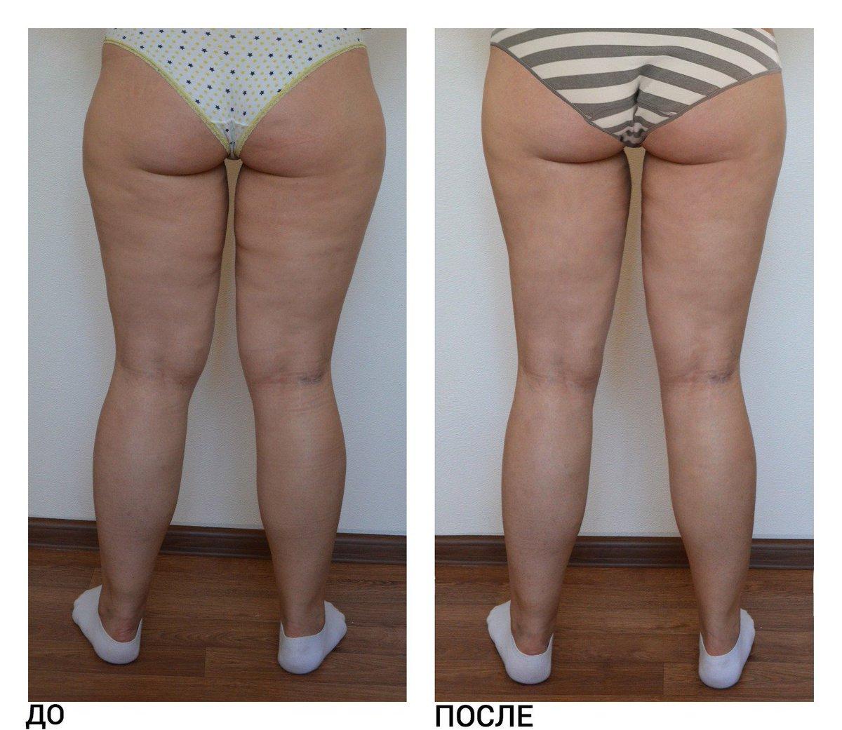 Процедуры Для Похудения В Бедрах. Рецепты обертываний ног для похудения - самые эффективные в домашних условиях и салонах