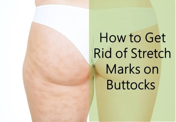 Stretch marks on the breasts
