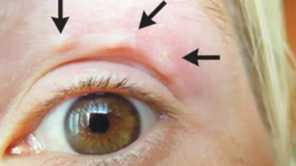 Weird, moving lump on woman's face turns out to be a live worm https://t.co/6Q7r5Amx9N