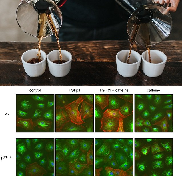 #Caffeine concentrations equivalent to 4 cups of #coffee improve #cardiovascular cell function, dependent on p27 in #mitochondria #PLOSBiology plos.io/2IfmWp9