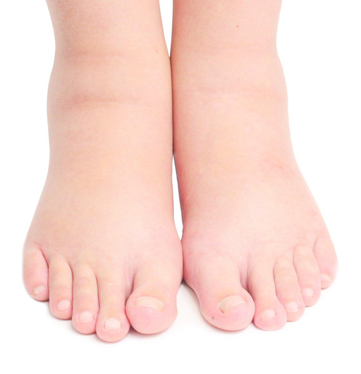 hinchazon de piernas posibles causas
