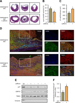CDKN1B/p27 is localized in mitochondria and improves respiration-dependent processes in the cardiovascular system—New mode of action for caffeine dlvr.it/QYF6nD @PLOSBiology