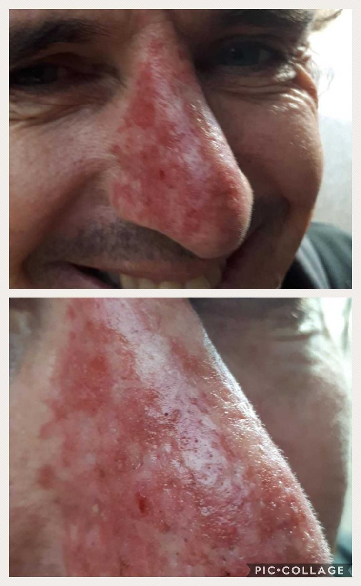 Brad Hogg On Twitter Efudix Skin Cancer Treatment Time Skin Damage After Playing And Working Outdoors Most Of My Life While Haphazardly Applying Suncream Don T Make This Mistake I Wanna Scratch Real