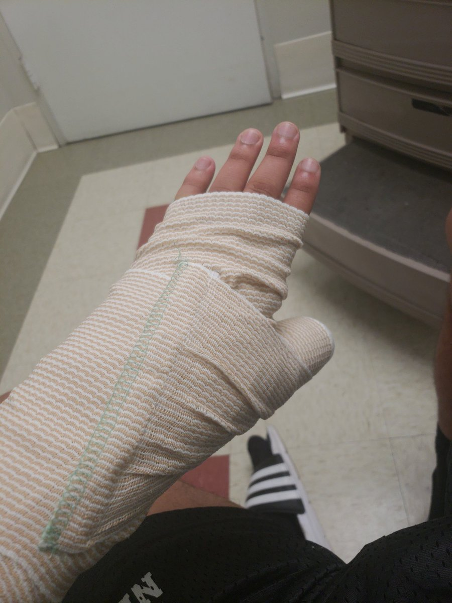 Eric On Twitter Finally Went To Hospital Hands Broke