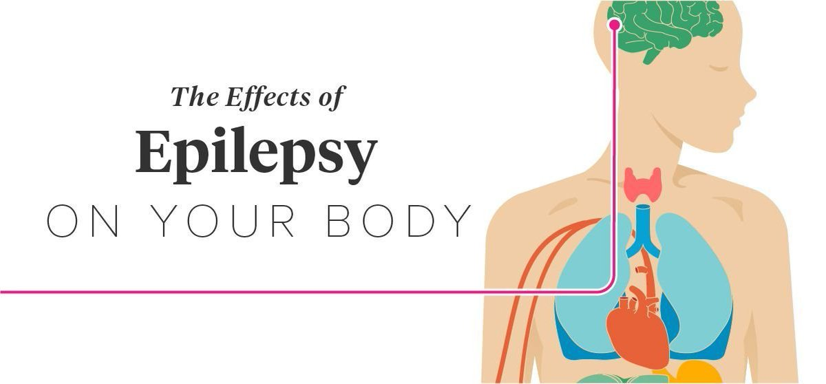 Epilepsy Research Uk Have A Look At This Cool Visual