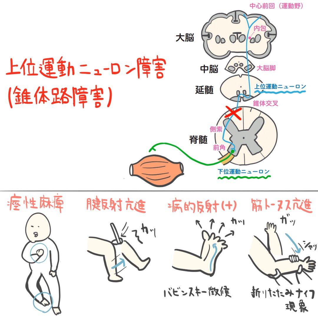 体 路 症状 錐