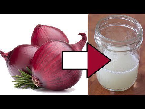 Please RT! #recipes #food Onion Can Cure At Least 5 Health Problems | Orange Health https://t.co/pgChutAD9Z https://t.co/sHQJpi9SJH