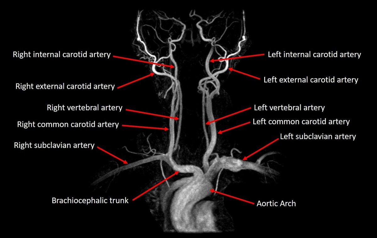 Radiology EDU on Twitter: \