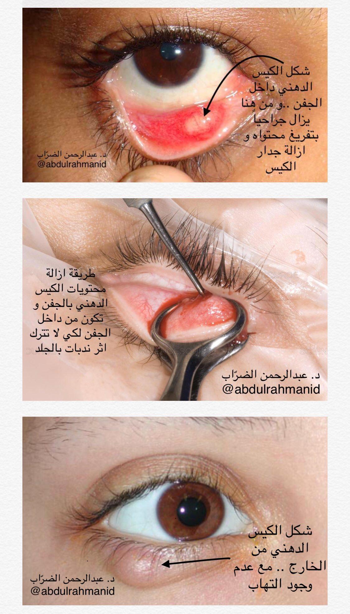 د عبدالرحمن الضر اب Dr Abdulrahman Aldarrab A Twitter الأكياس الدهنية بالجفون اسبابها و طرق علاجها صحة السعودية