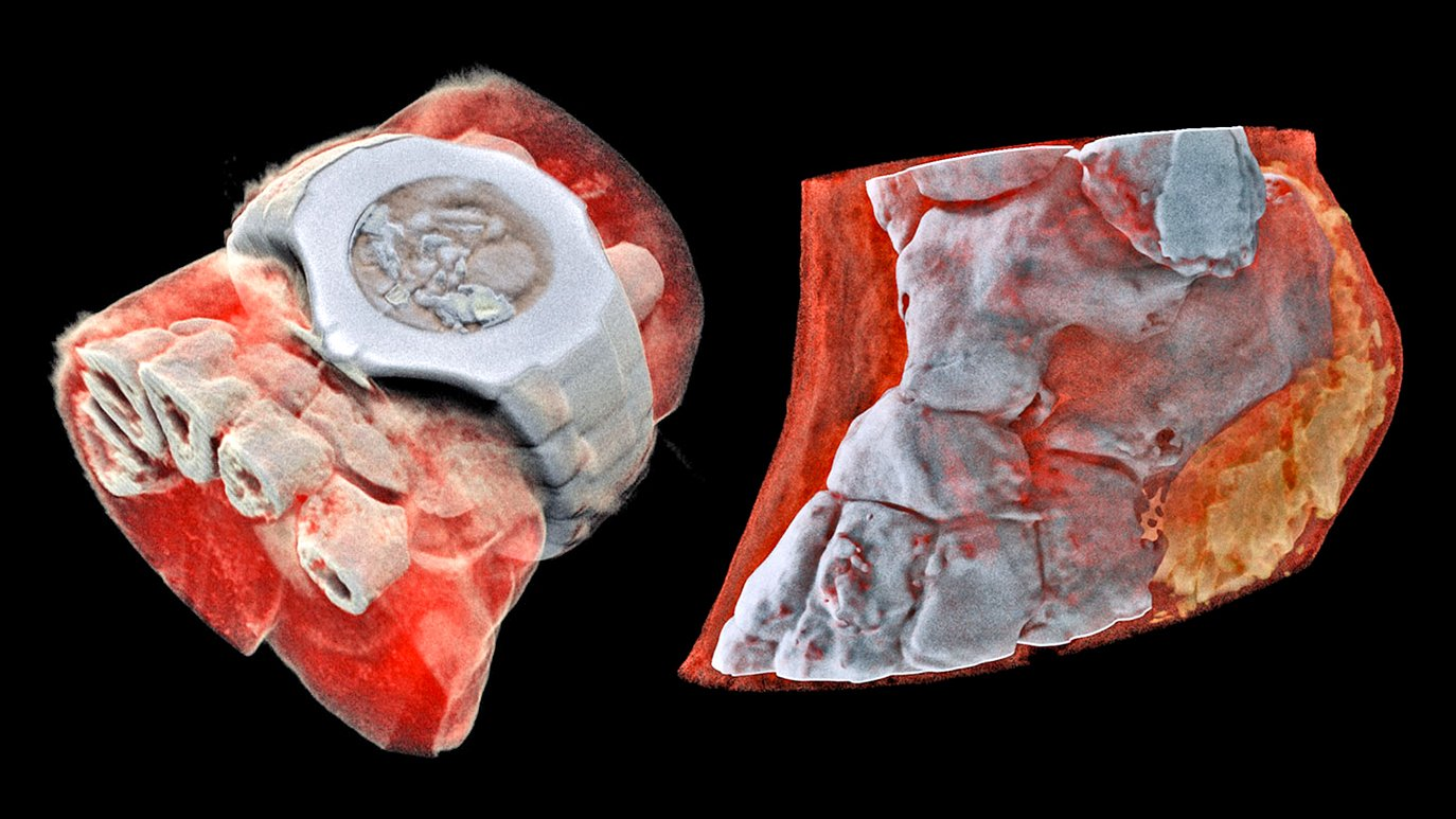 The world's first full-color, 3D X-rays are freaking me out https://t.co/0pfZfmlB7l https://t.co/Cpn4d3zgD9