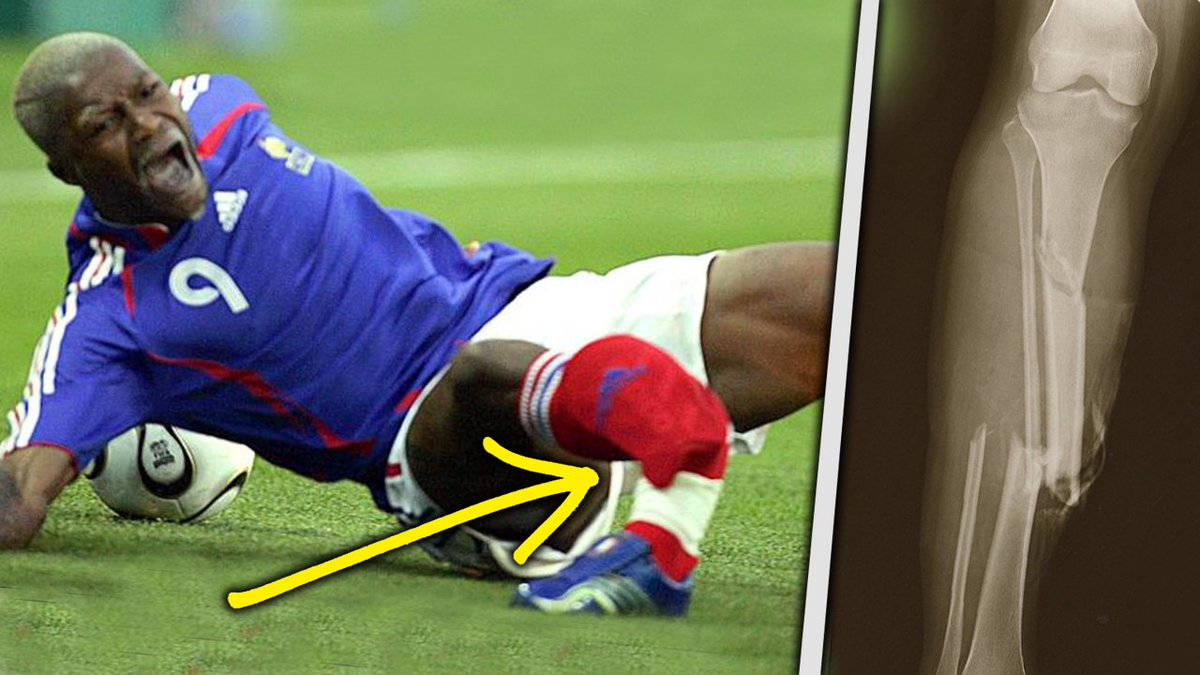 Bad football injuries pictures