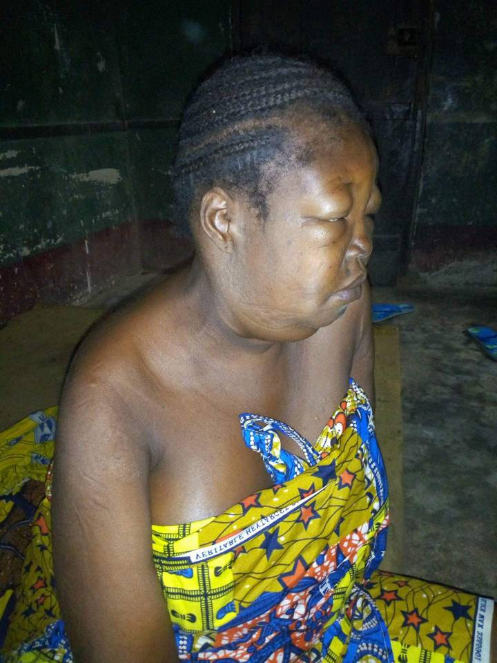 31-years-old woman in need of 12M for Kidney transplant