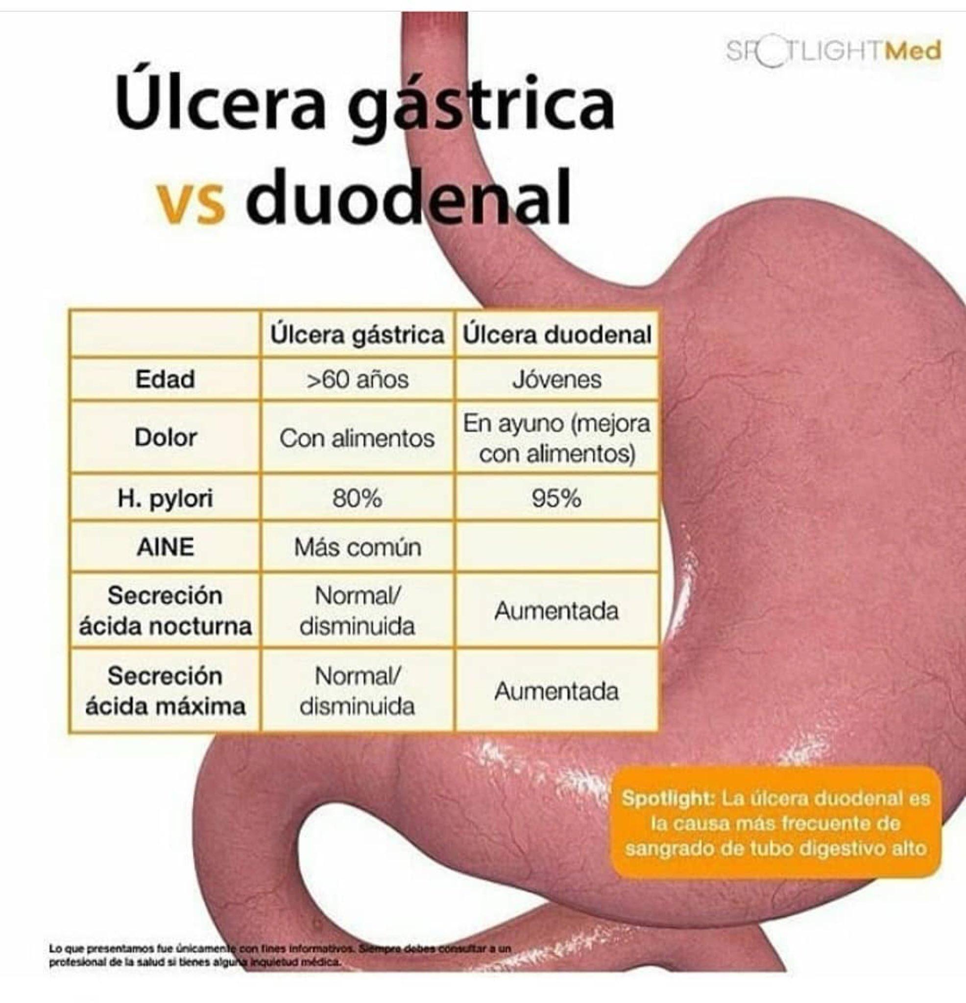 Úlcera gástrica vs duodenal para tener en claro bien las diferencias. https://t.co/LIJfMbhuif