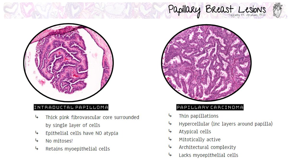 papillary lesion without atypia