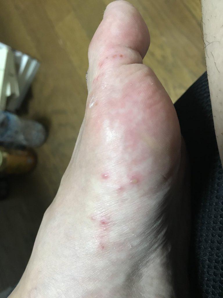 足 ブツブツ かゆい