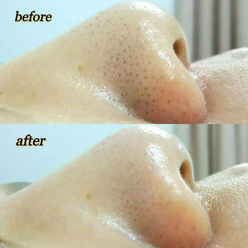 毛穴 黒い 鼻 毛穴の黒い角栓の原因と取り方5個!鼻・耳・背中のケアは?